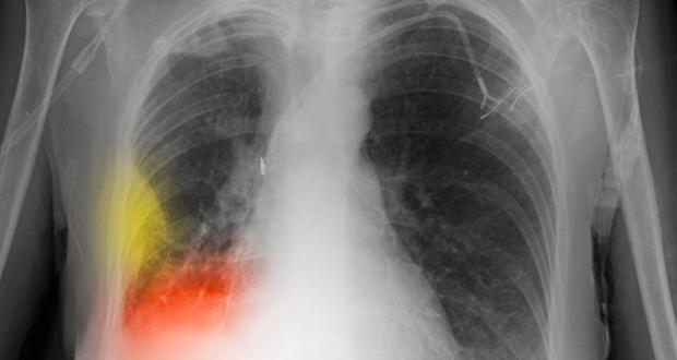 Ποια συμπτώματα θα σας προειδοποιήσουν, εάν κινδυνεύετε από… ΚΑΡΚΙΝΟ ΤΟΥ ΠΝΕΥΜΟΝΑ