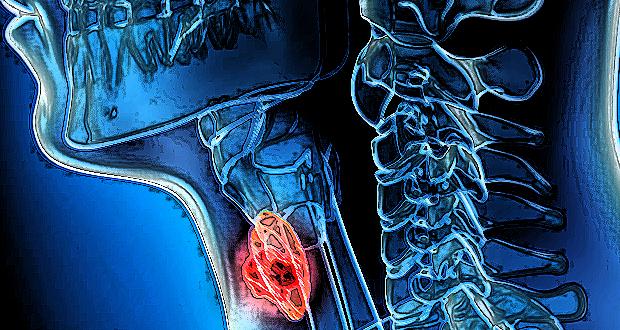 Ποια συμπτώματα θα σας προειδοποιήσουν, εάν κινδυνεύετε από… ΚΑΡΚΙΝΟ του ΛΑΡΥΓΓΑ