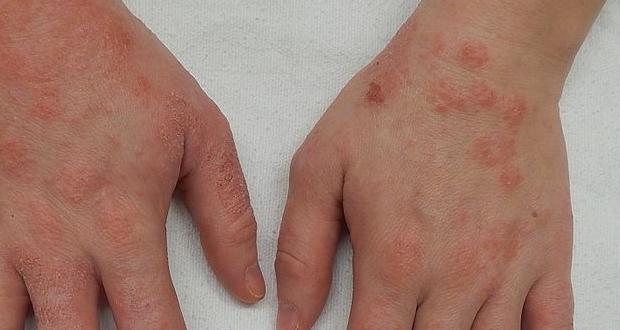 Πώς να προστατευτείτε από τις δερματικές αλλεργίες