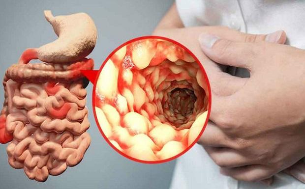 Χολολιθίαση: Κινδυνεύουν περισσότερο οι ασθενείς με νόσο του Crohn;