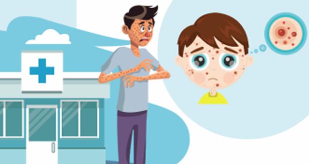«Καμπάνια του ΚΕΕΛΠΝΟ για την ιλαρά»