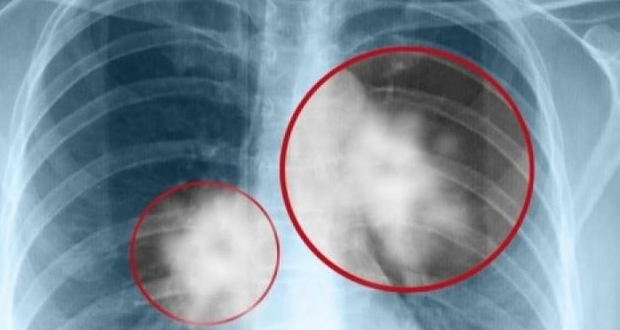 Συνδυαστική θεραπεία μειώνει τον κίνδυνο εξέλιξης του καρκίνου του πνεύμονα