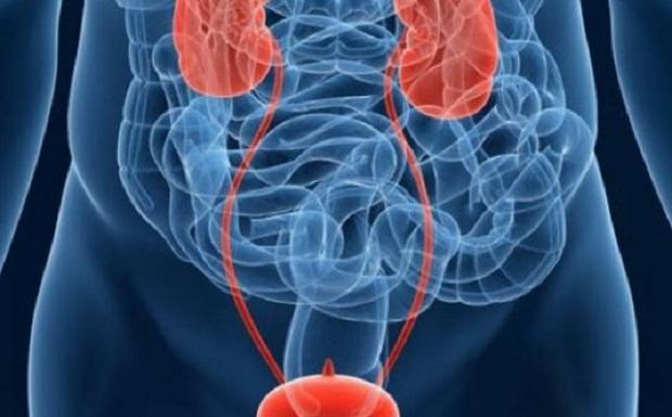 Συνδυασμός φαρμάκων δίνει ενθαρρυντικά αποτελέσματα για τη θεραπεία ασθενών με προχωρημένη μορφή καρκίνου της ουροδόχου κύστης