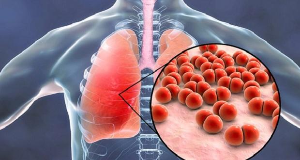 Μάστιγα για παιδιά και ηλικιωμένους η πνευμονιοκοκκική νόσος