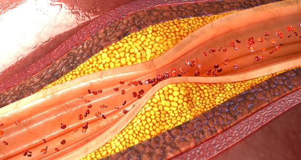 Πώς η χοληστερόλη μπορεί να επηρεάσει τη γονιμότητα